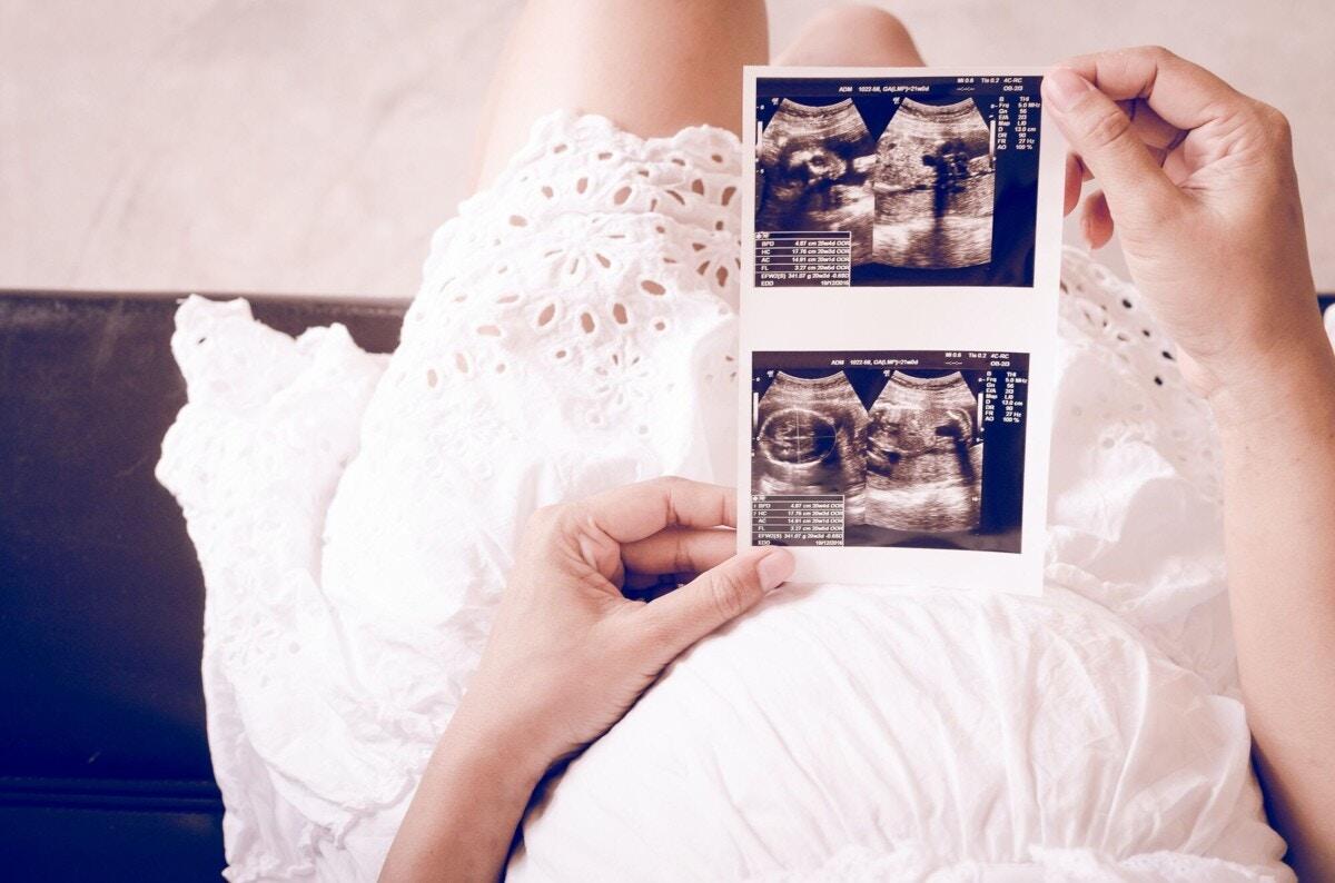 性別 わかる 時期 妊娠