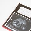 【医療監修】エコー写真を妊娠の経過別に紹介!写真の見方や性別の見分け方