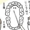 親が見つけにくい要注意箇所はここ!1歳児の虫歯を早く見つけるコツ